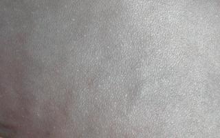 Аллергия у сфинксов лечение