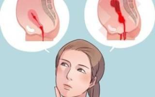 Обильные месячные со сгустками причины лечение