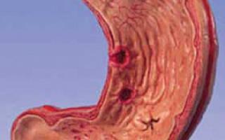 Лечение стеноза желудка народными средствами