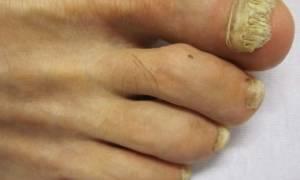 При какой температуре погибает грибок ногтей