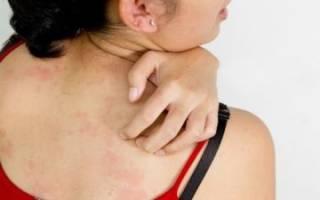 Аллергия на собственный пот лечение
