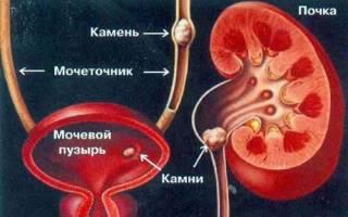 Народные методы лечения мочекаменной болезни почек
