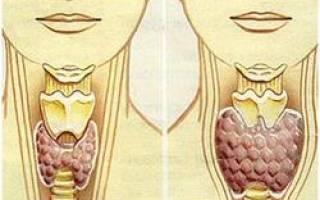 Гипотиреоз симптомы лечение народными средствами