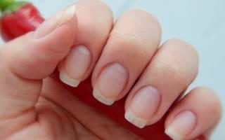 Как проявляется грибок на ногтях рук