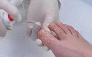 Как победить грибок ногтей на ногах