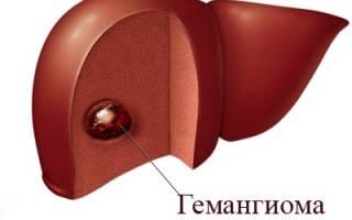 Гемангиома печени лечение народными методами