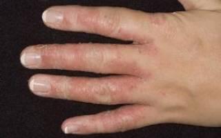 Грибок около ногтя на руке