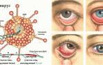 Аденовирусная инфекция симптомы и лечение