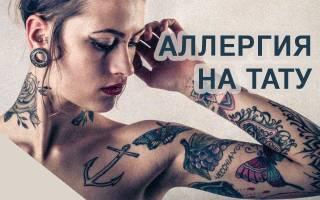 Аллергия на татуировку лечение