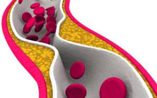 Народные методы лечения стеноза