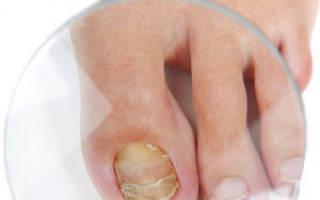 Микоз ногтей лечение в домашних условиях