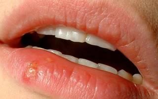 Чем обработать рану после герпеса