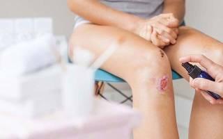 Какие антибиотики принимать при ранах