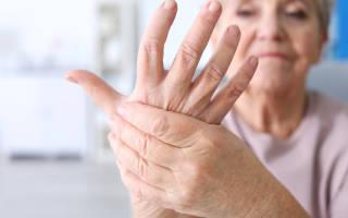 Отнимаются руки причины лечение