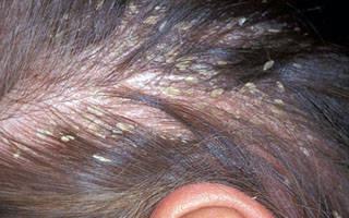 Лечим грибок рф dermatitis