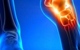 Народные методы лечения голеностопного сустава