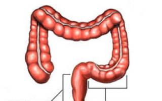 Народные методы лечения сигмовидной кишки