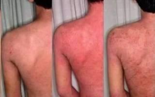 Диатез у взрослых симптомы и лечение