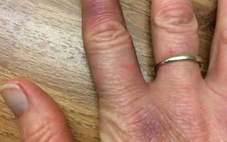 Перелом пальца руки ребенка симптомы