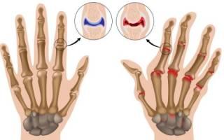 Народные методы лечения ревматоидного артрита кисти рук