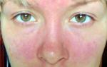 Аллергия от нервов лечение