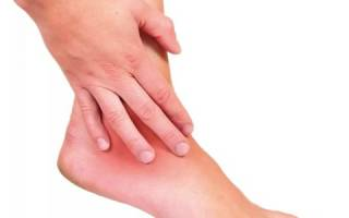 Воспаление голеностопного сустава симптомы и лечение