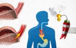 Изжога народные методы лечения