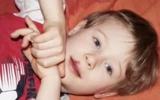 Вирус простого герпеса у ребенка