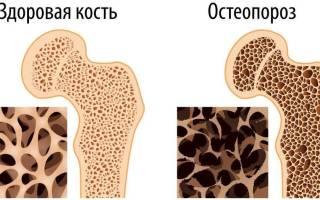 Остеопороз у детей симптомы и лечение
