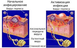 Лечить герпес под носом у ребенка