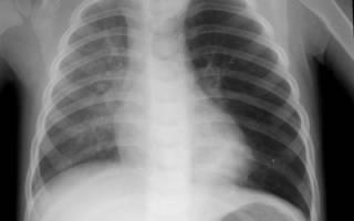Можно ли делать рентген ребенку 5 лет