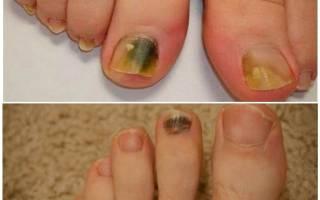 Доктор мясников о грибке ногтей