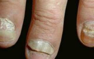 Грибковые заболевания волос ногтей
