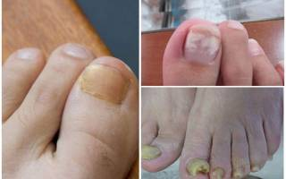Елена малышева грибок ногтей