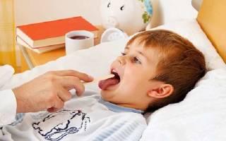 Аденоиды у детей 3 степени и аллергия