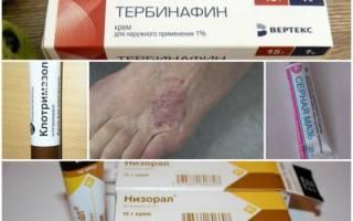 Недорогие мази от грибка ногтей на ногах