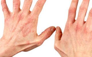 Кожная аллергия на траву лечение