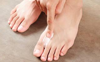 Как убрать грибок между пальцами ног