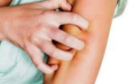 Аллергия зуд кожи лечение