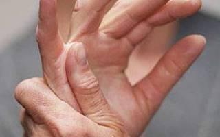 Щелкающий палец лечение народными методами