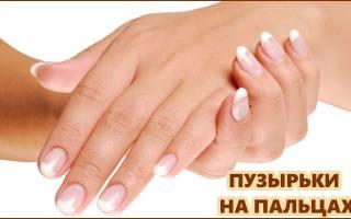 Аллергия на пальцах рук пузырьки лечение