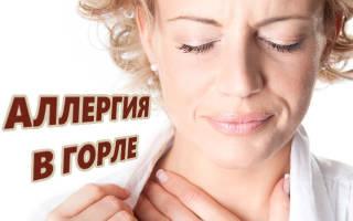 Аллергия в горле лечение