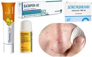 Какие антибиотики угревой сыпи